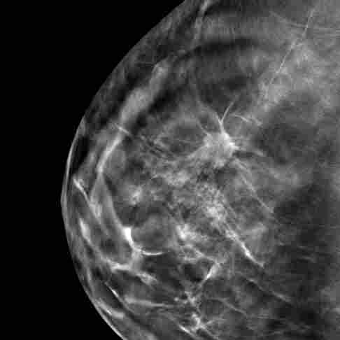3-D Mammography Finds More Tumors, But Questions Remain