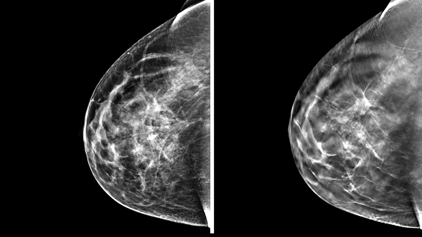 3-D Mammography Finds More Tumors, But Questions Remain ...