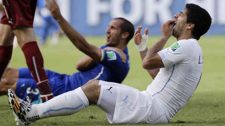 Luis Suarez holds his teeth after biting Giorgio Chiellini's shoulder during last week's World Cup match between Italy and Urugua