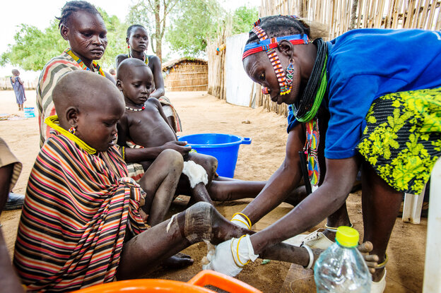 Nakal Longolio Acii, 9, had to stay several weeks at a Guinea worm clinic in Eastern Equatoria, South Sudan, while health workers coaxed the parasite out of her leg.