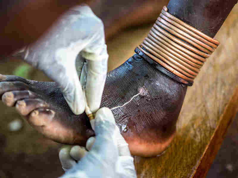 A health worker extracts a Guinea worm from a person's foot at a clinic in Eastern Equatoria State, South Sudan.