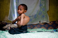 Sisay Gudeta, then age 7, sits on his bed at his home in Addis Ababa, Ethiopia, May 2013. At the time, his spine curved about 120 degrees. Without surgery, Sisay's scoliosis would have killed him before age 18, doctors said.
