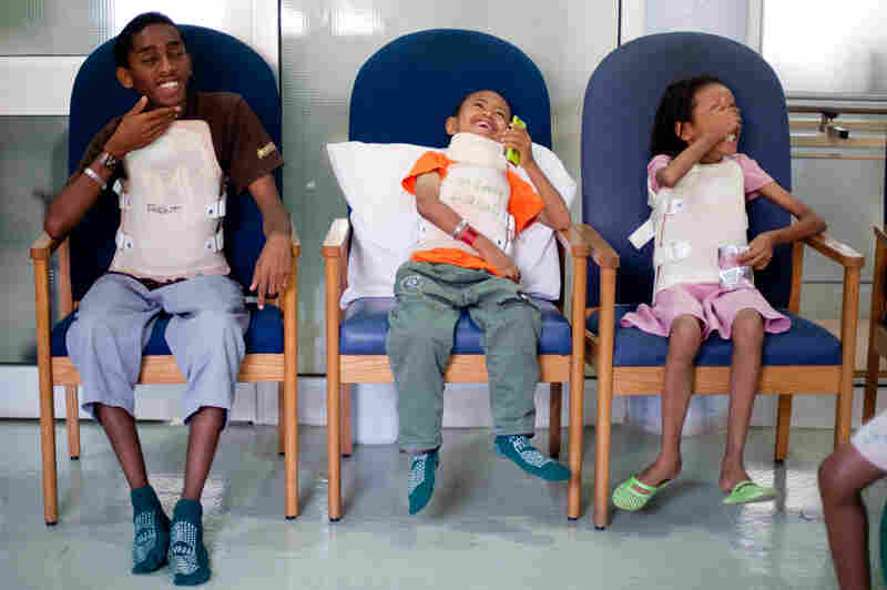 Sisay attends a group physical therapy session at the spine hospital, March 20. One week after the second surgery, the 7-year-old boy was walking on his own without much pain.