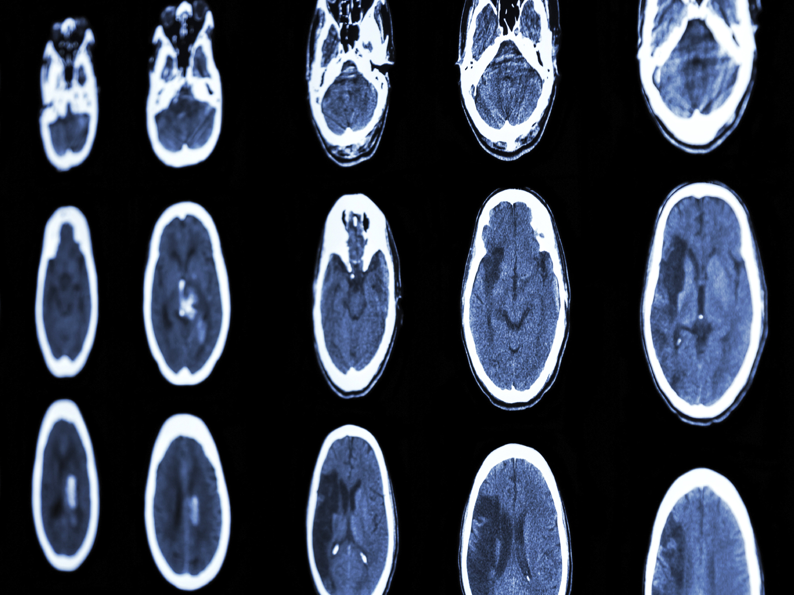 Stroke Rate May Be Declining In Older Adults
