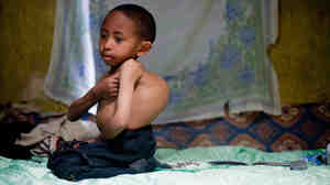 Sisay Gudeta, then age 7, sits on his bed at his home in Addis Ababa, Ethiopia, May 2013.