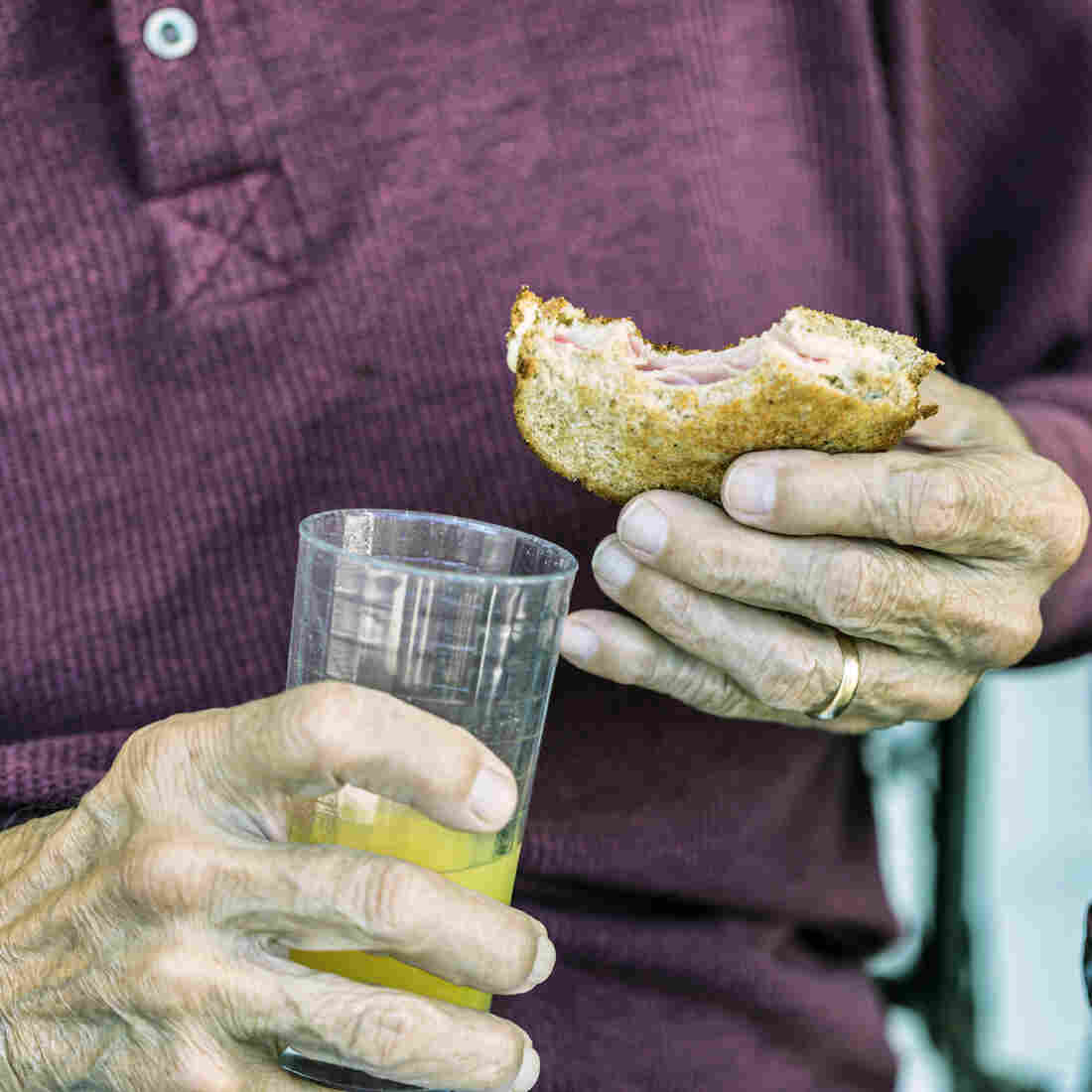 Malnourished seniors may be forgotten until they show up in the emergency room, often for another reason like an injury.