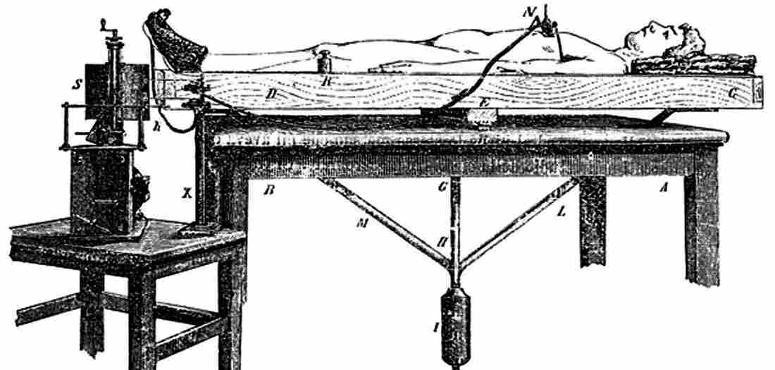 "Angelo Mosso's ""human circulation balance"" machine worked like a seesaw to measure blood flow changes to the brain."