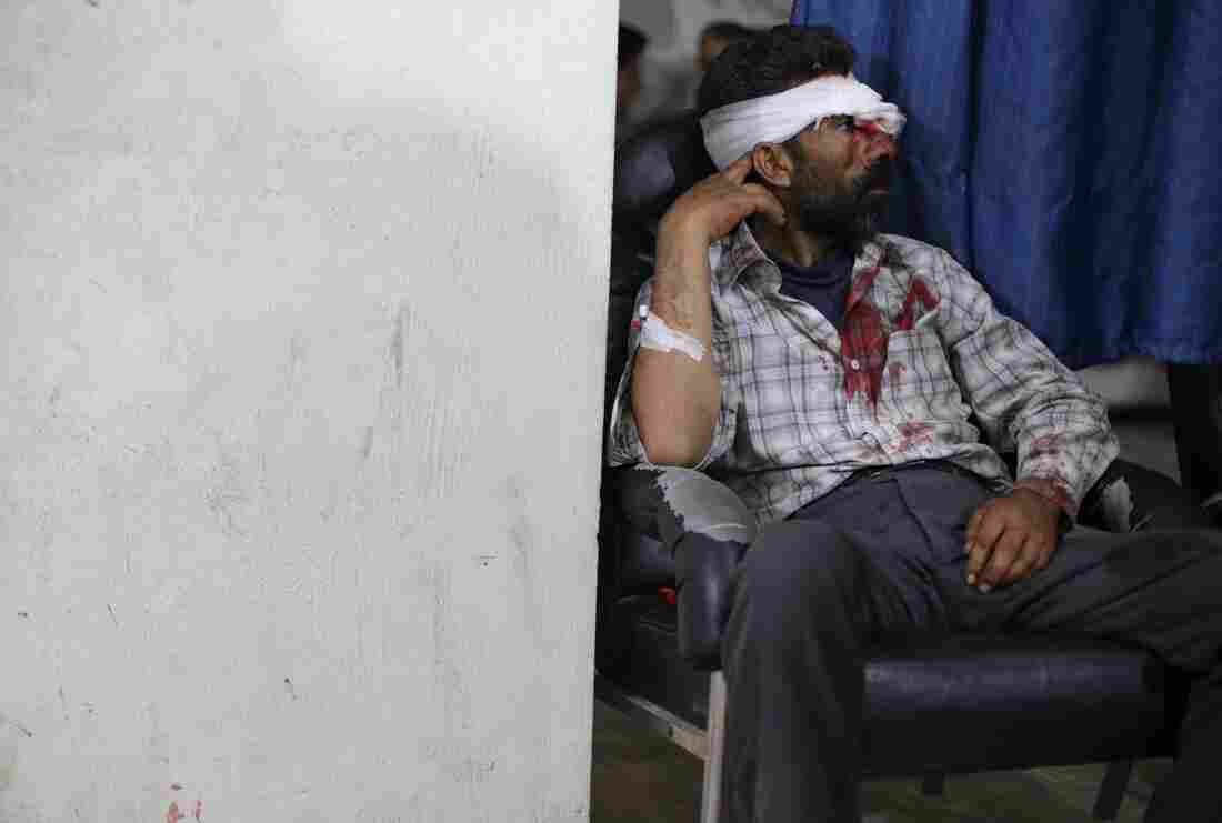 An injured man sits after being treated at a medical center following shelling in the city of Douma, Syria.