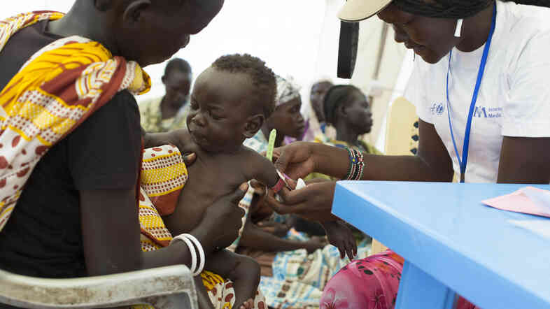 A child with suspected malnutrition is examined at a medical clinic in Malakal, South Sudan, in July.