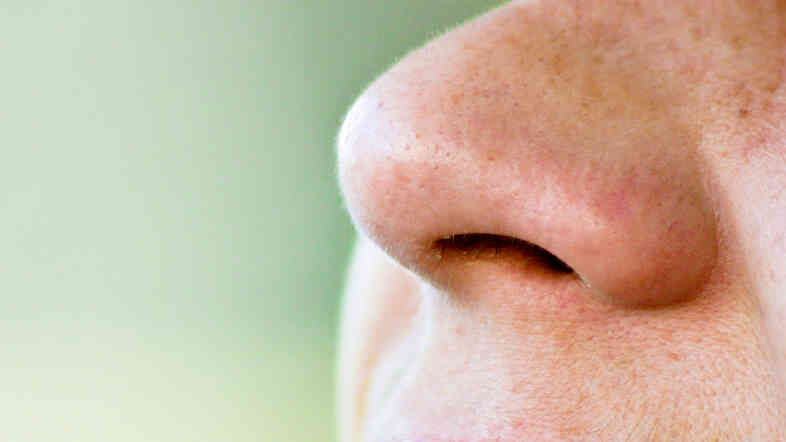 Want to find your personal posse of Demodex mites? Gently scrape the pores on the sides of your nose.
