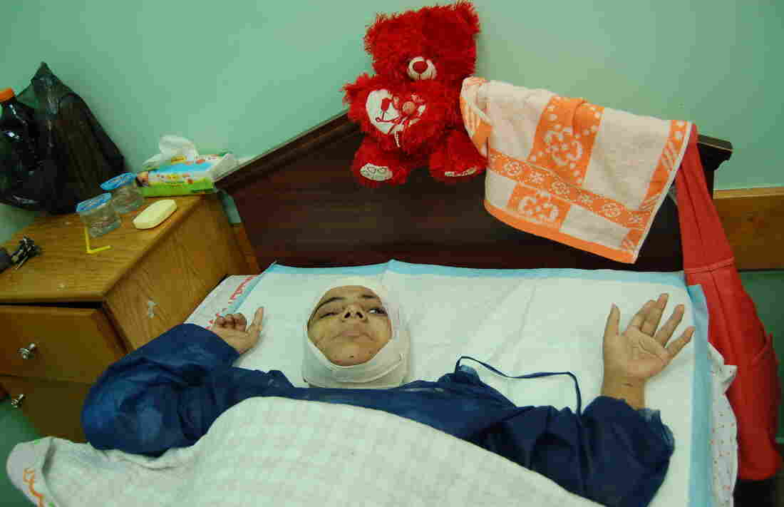 Mai Hamada, 30, was injured by an Israeli airstrike on a home for the disabled in July in the Gaza Strip. Hamada has cerebral palsy and can't walk. Israel is investigating cases of possible illegal action by its military and may look into the attack on the group home.