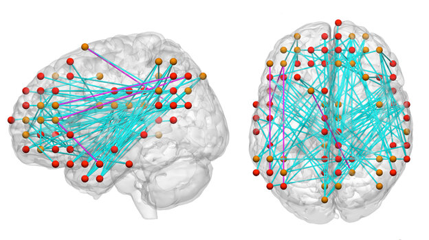Connection maps of brain areas are helping reseachers study the causes of ADHD