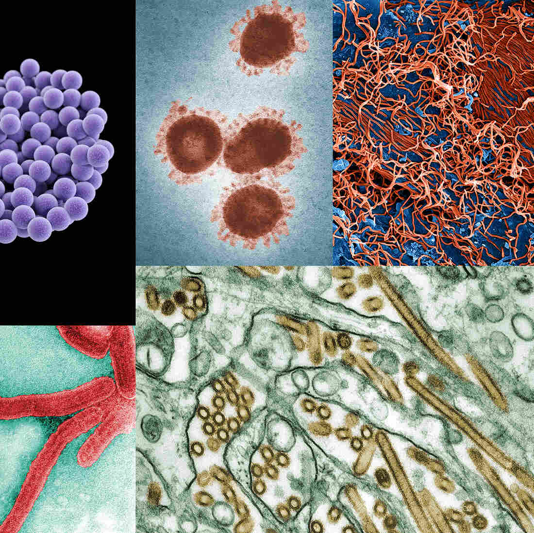 Do you know what the deadliest disease is? Hint: It's not Ebola (viral particles seen here in a digitally colorized microscopic image, at top right, along with similar depictions of other contagious diseases)