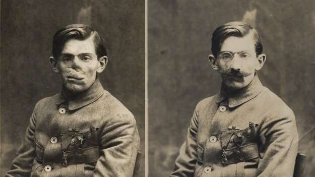 Ladd's papers include these photos of a World War I veteran with and without his mask, circa 1920.
