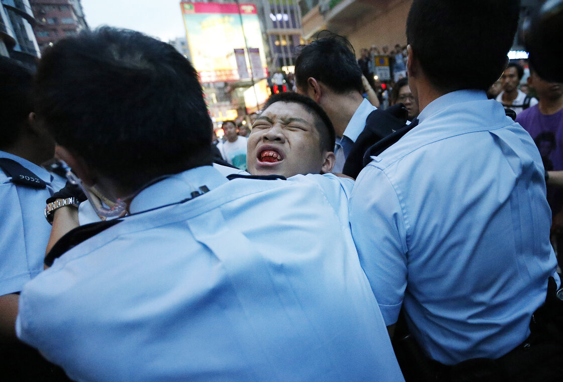 A student protester is injured after being pulled off and hit by residents and pro-Beijing supporters.