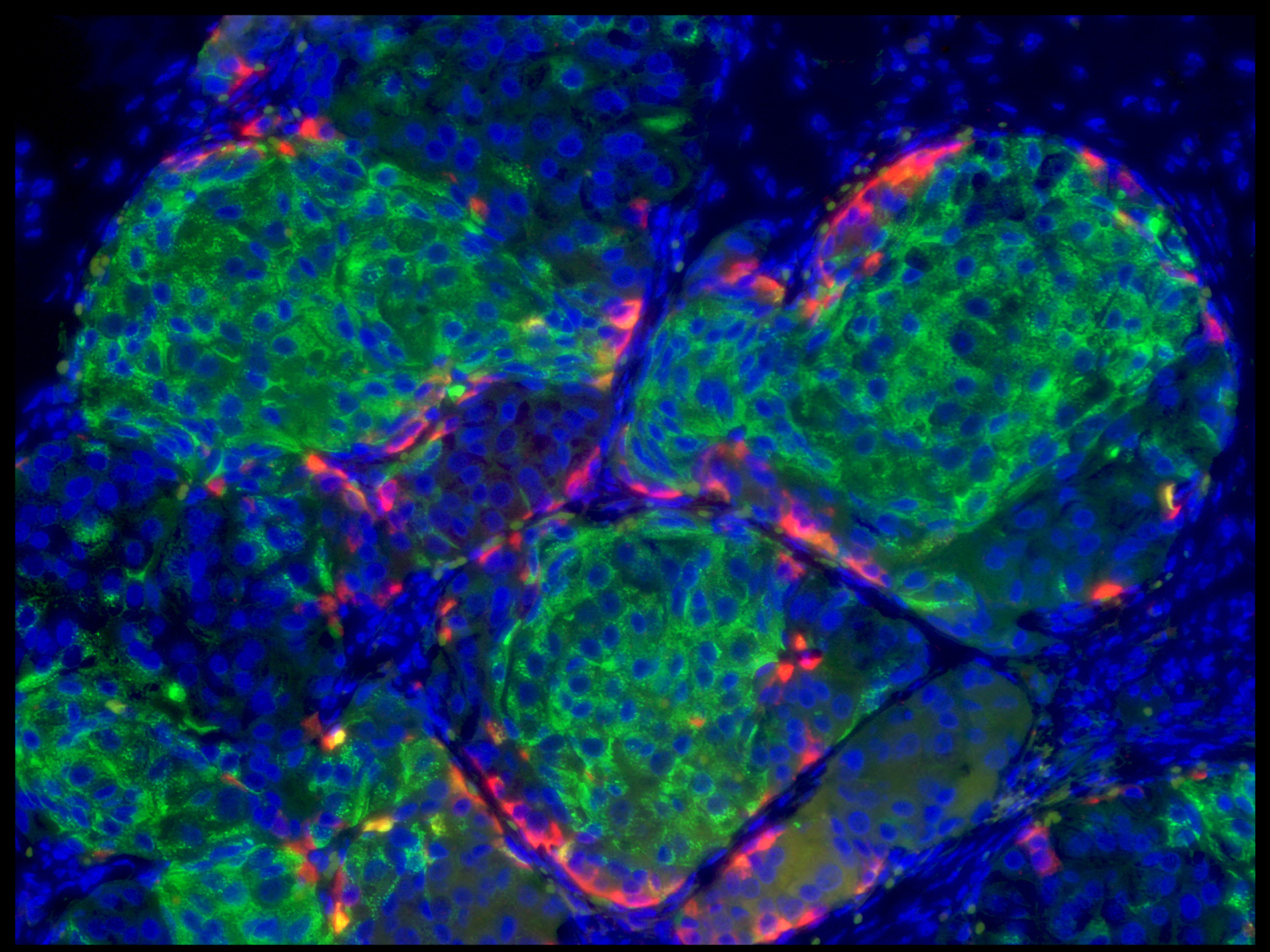 Scientists Coax Human Embryonic Stem Cells Into Making Insulin