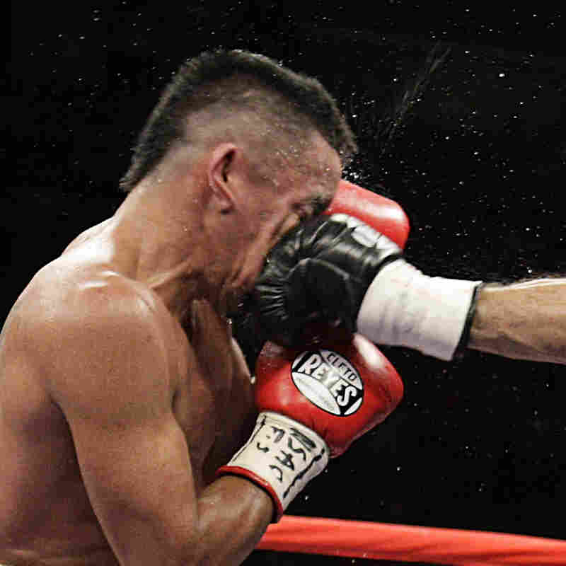 Rocky Juarez of the U.S. gets punched in the face in July 2010 by Jorge Linares of Venezuela during their WBA Fedelatin lightweight title fight in Las Vegas. Some researchers believe the human face evolved to take punches — without, of course, the boxing gloves.