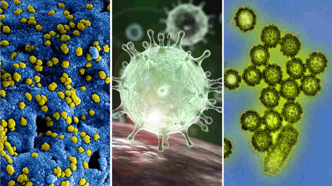 A rogues gallery of the viruses (left to right) that cause MERS, SARS, and influenza.