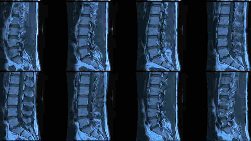 In 49 U.S. states, spotting the squished disc in this spinal MRI is still much easier than learning the price of the MRI in advance.
