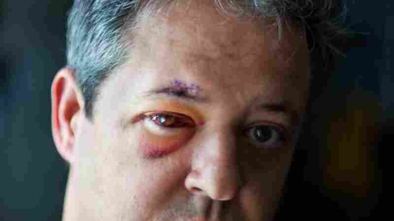 Ouch! Jeffrey Craig Hopper got good emergency treatment after being hit in the eye with a baseball in June. But months later he was slapped with an extra medical bill he never expected.