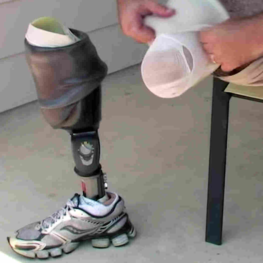 Gary Walters demonstrates his self-cooling prosthetic.
