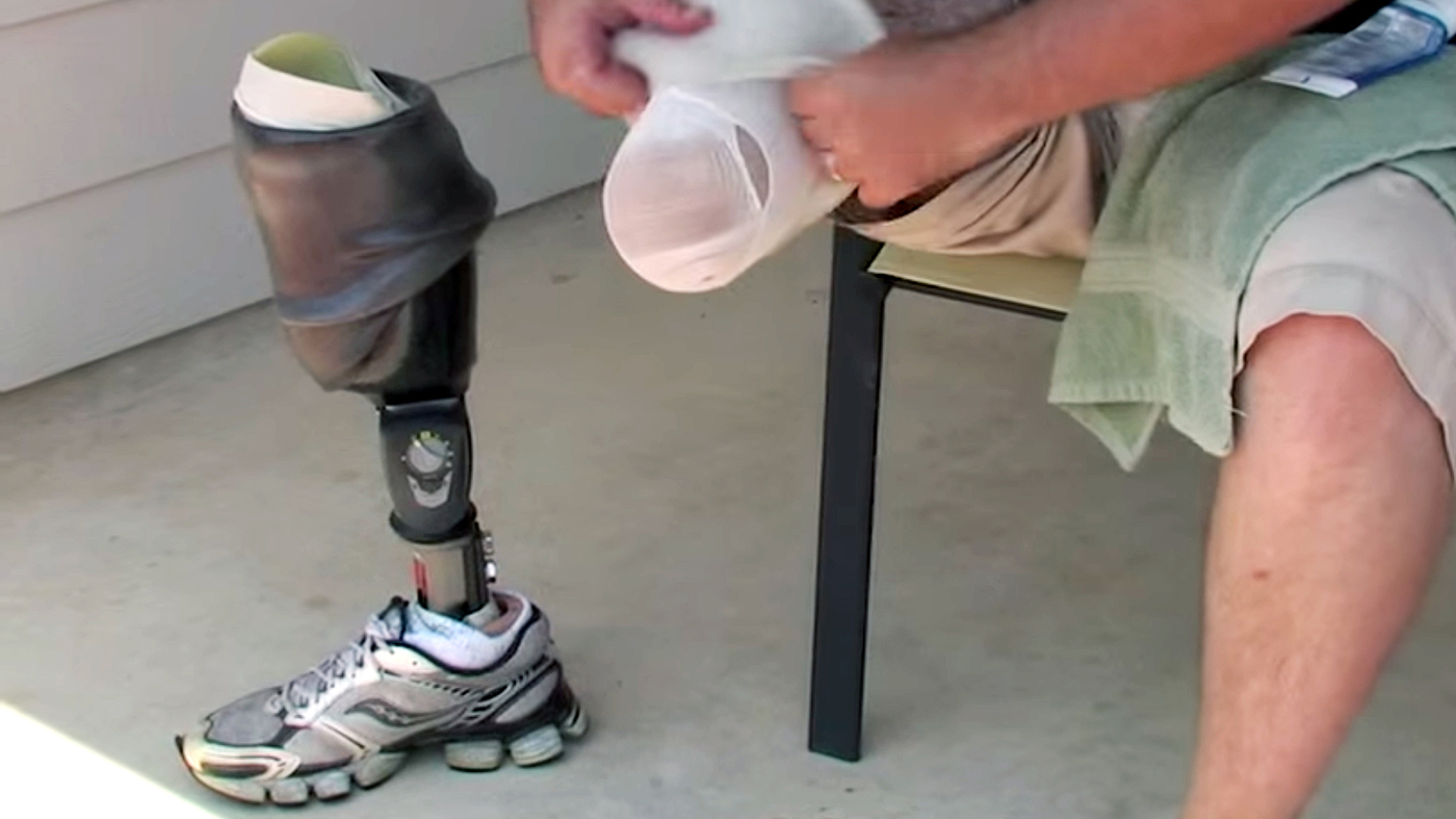 jobs in prothesis 2018-06-13 compare your salary with the national and state salaries for orthotists and prosthetists make more money as an orthotist or prosthetist find out how much an orthotist or prosthetist get paid in your area research the cities.