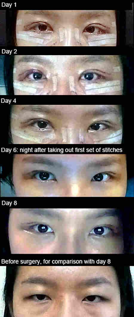 Jiwon Kim's progression post-surgery.