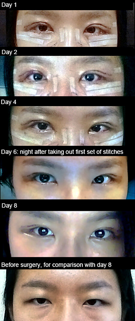 The Many Stories Behind Double-Eyelid Surgery : Code Switch : NPR