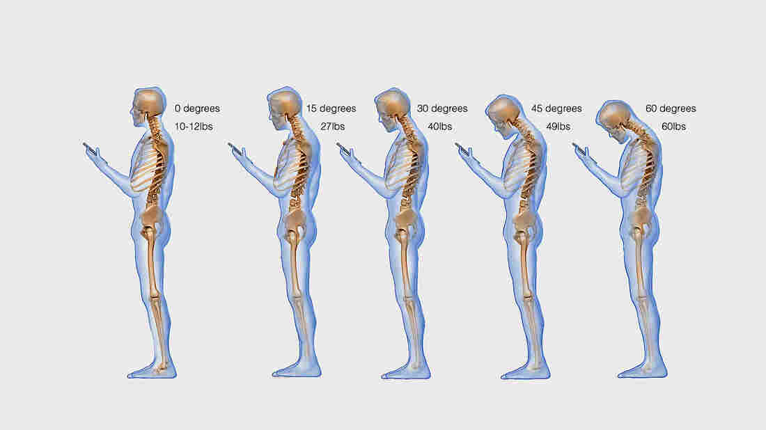 Posture and stress on the cervical spine.