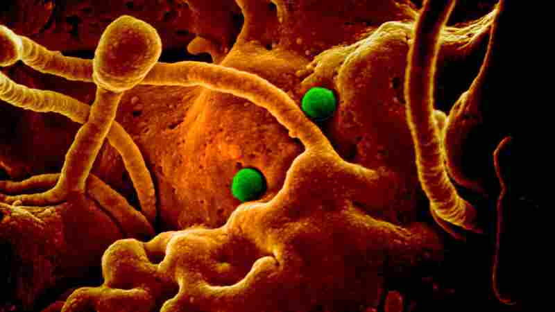 The coronavirus responsible for Middle East respiratory syndrome (green particles) seen on camel cells in a scanning electron micrograph.