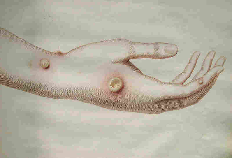 """An illustration of cowpox pustules from the first edition of Edward Jenner's """"An Inquiry into the Cause and Effects of the Variolae Vaccinae."""""""