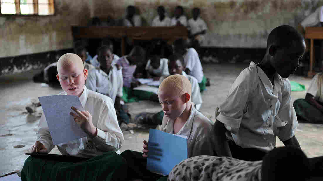 Research on albinism
