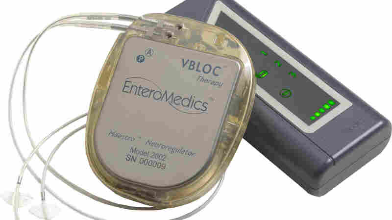Electrical impulses generated by a pacemaker-like device are transmitted to the vagus nerve by electrodes.