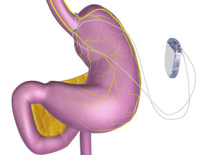 Enteromedics new pacemaker-like device