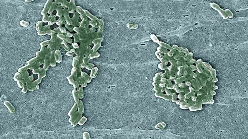 Scientists reprogrammed the common bacterium E. coli so it requires a synthetic amino acid to live.
