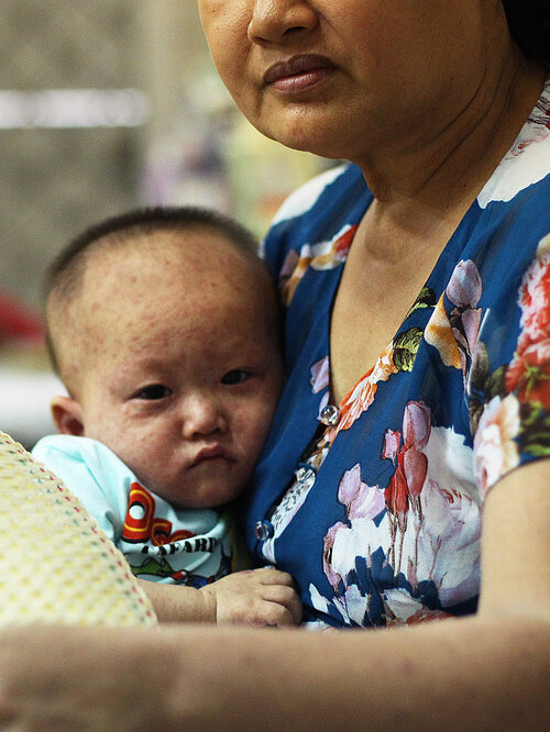 A Vietnamese boy is treated for measles in a state-run hospital in April 2014.