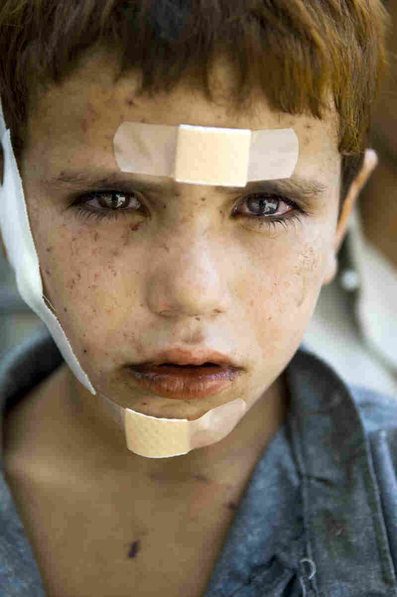 Khalid, 7, sits outside of the medical tent of a U.S. military base in Korengal Valley, Afghanistan, after elders from a village claimed he was injured by shrapnel from a bomb dropped by the Americans in October 2007.