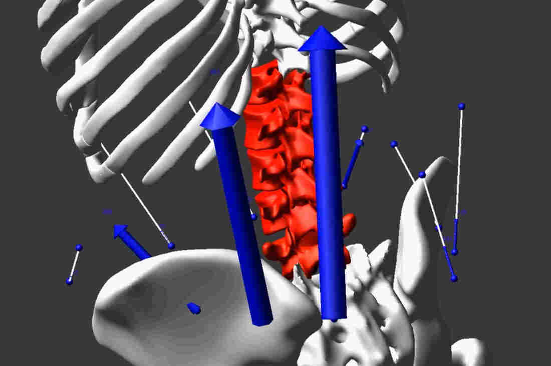 In this close-up screenshot from a simulation video, you can see the exact moment NPR correspondent Daniel Zwerdling endured dangerous levels of stress on his spine while re-creating the way nurses push their patients in a lift chair. The blue arrows show the high magnitude and distribution of forces from his muscles, while the red indicates the high level of forces on his disks.