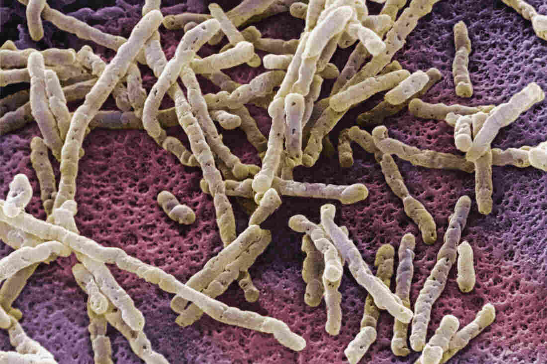 An overgrowth of Clostridium difficile bacteria can inflame the colon with a life-threatening infection.
