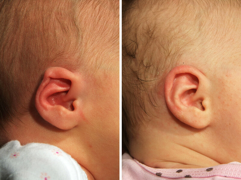 Parents Choose A Simple Device To Reshape A Baby's Ear