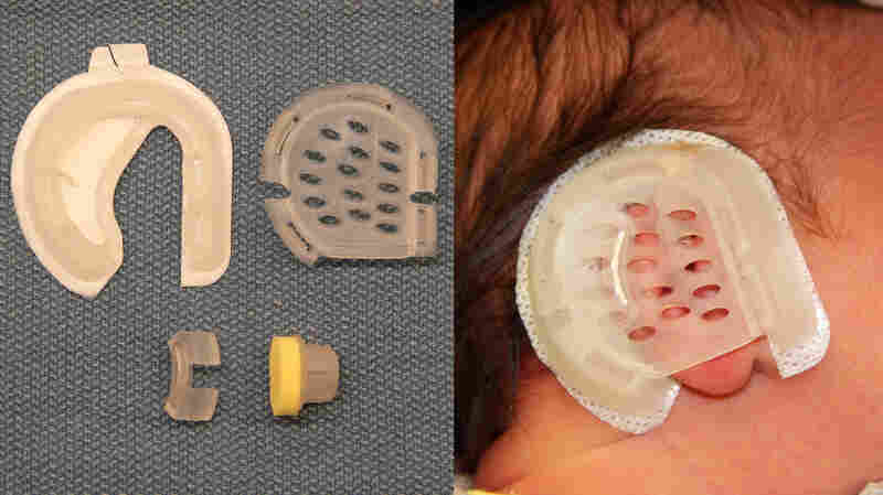 The EarWell device attaches to a baby's head with adhesive tape and is worn for two to six weeks.