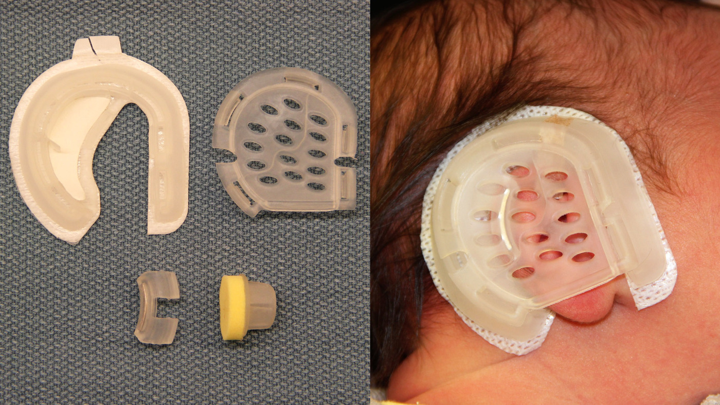 Similiar Medicaid Application Keywords Parents Choose A Simple Device To  Reshape A Baby's Ear : Shots