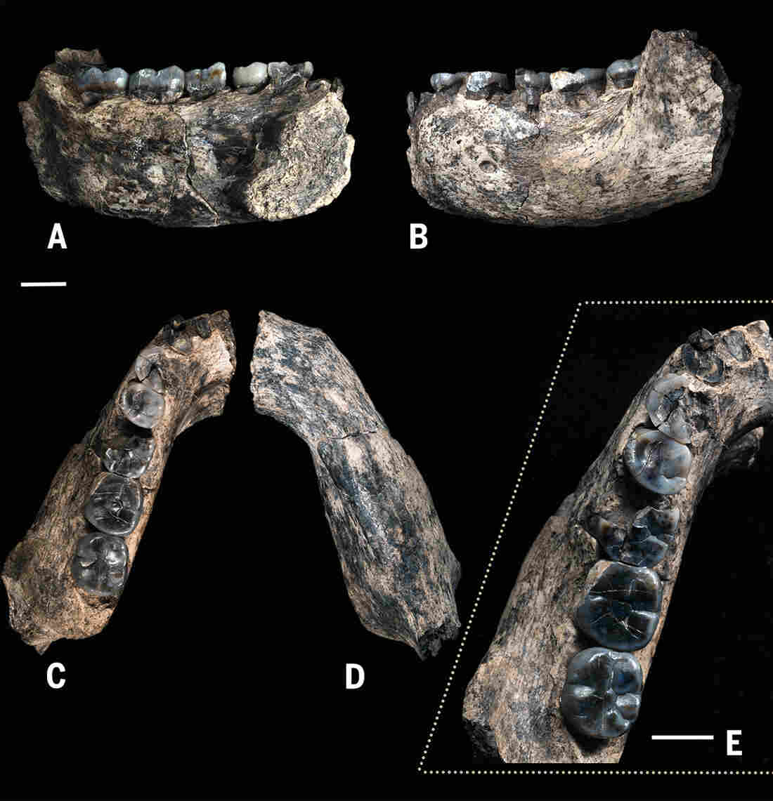 Five views of the fossilized jawbone highlight teeth that are becoming more slender, scientists say, relative to the blocky, more apelike teeth of Australopithecus.