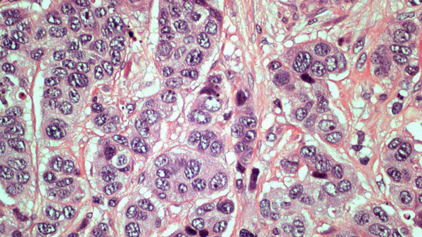slide pathologists use to look for signs of cancer in biopsy