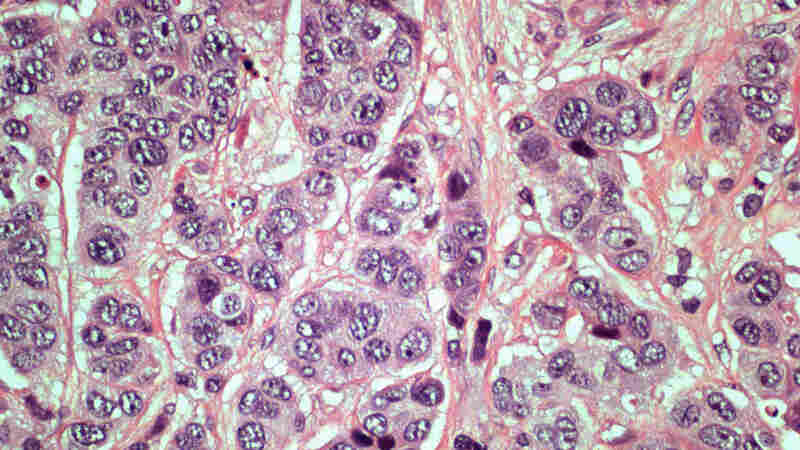 Pathologists use slides like this one to look for signs of cancer in breast tissue.