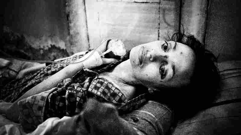 Polina, 37, rests in a hospital bed in St. Petersburg, Russia, in 2011. She is severely malnourished and suffers from numerous diseases, including tuberculosis, hepatitis C and HIV.