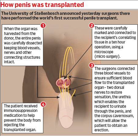 The first successful penile transplant.