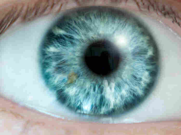 Environmental variations could affect heritability of biological traits, like nearsightedness.