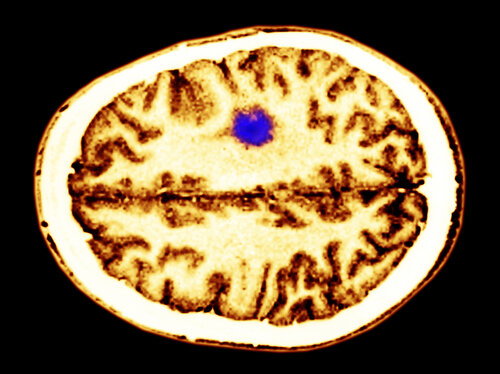 A color-enhanced cerebral MRI showing a glioma tumor.