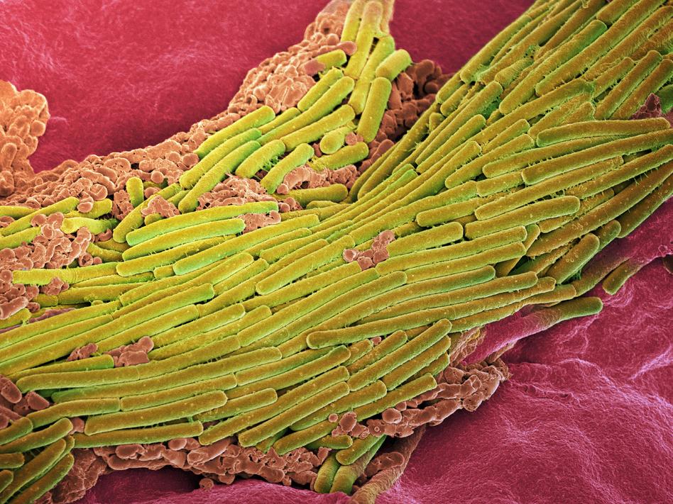Spore Wars Help Fend Off Life-Threatening Bacterial